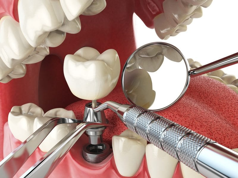 What To Know Before Your First Dental Implant Surgery