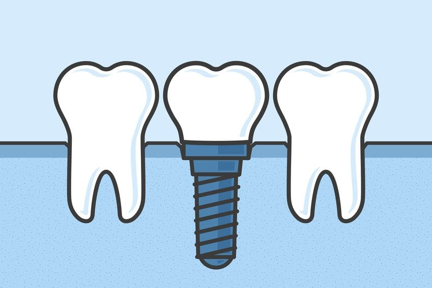 Debunking The 3 Most Common Myths About Dental Implants