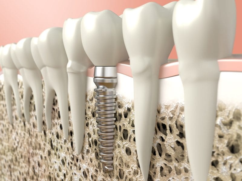 What You Should Know About Dental Implants Prior to the Procedure