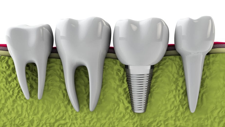 3 Awesome Benefits of Dental Implants