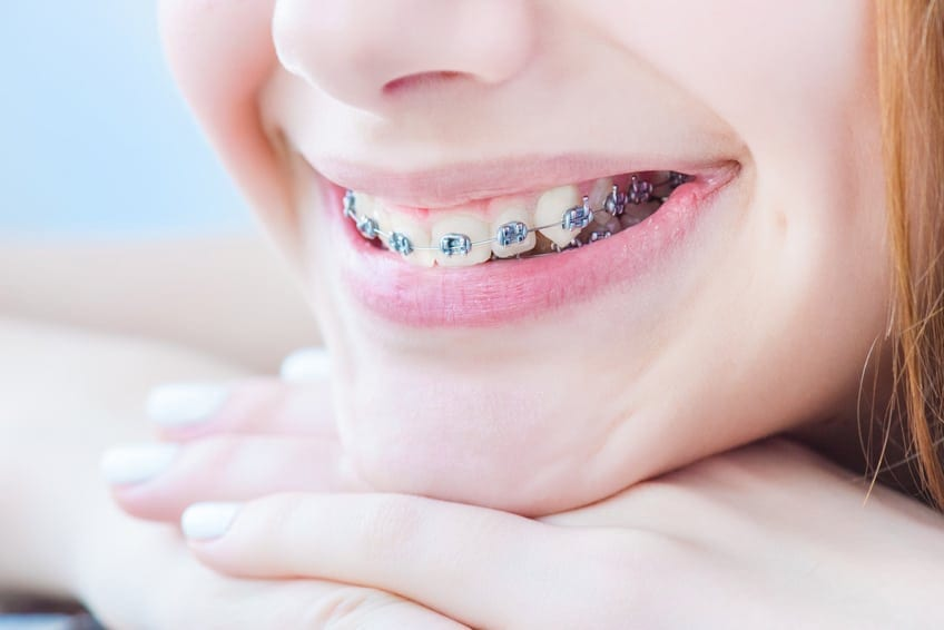Invisalign vs Braces: Which Is The Right Choice For You?