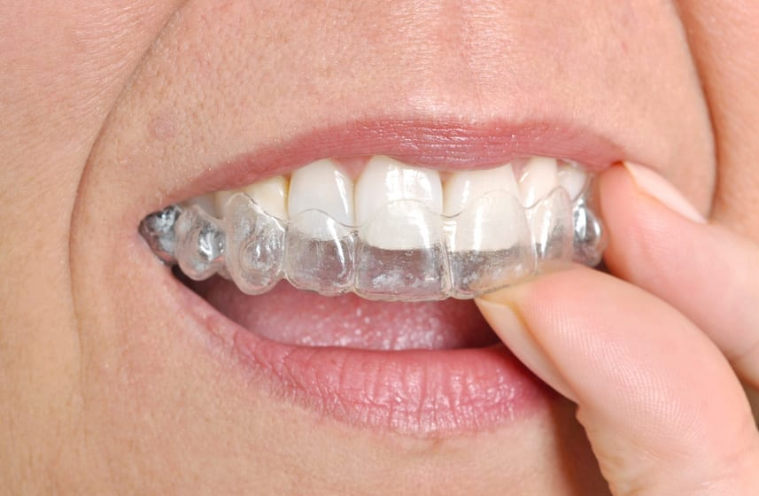 Invisalign For Adults: It's Never Too Late To Straighten Your Teeth